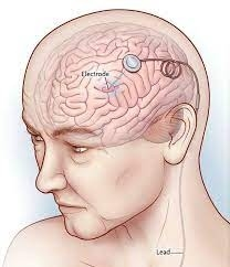NEUROLOGIA INFANTIL - Foto 7