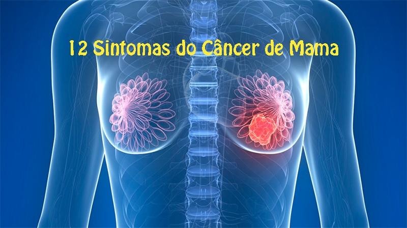 12 Sintomas do Câncer de Mama