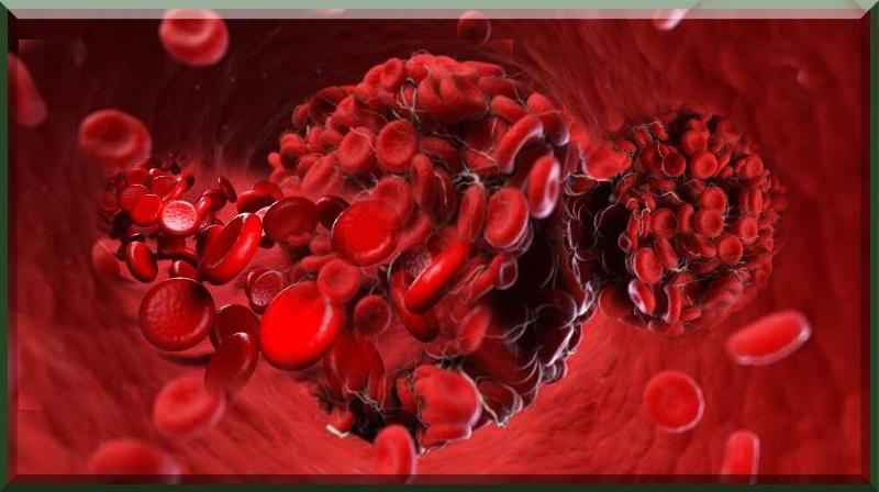 A coagulação do sangue pode ser a causa raiz da síndrome de Long COVID, ...