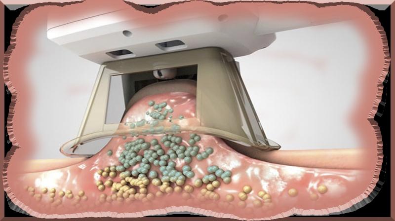 A complicação do procedimento de 'congelamento de gordura' pode ser mais comum do que se..