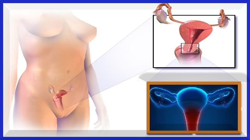 A tecnologia de teste de câncer cervical pode substituir o papanicolau, salvar vidas...