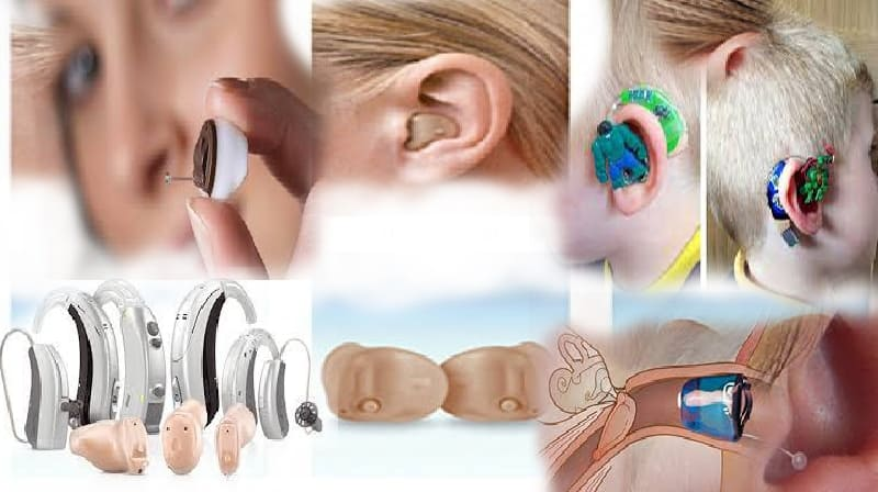 Aparelhos auditivos diminuem a chance de demência, depressão e queda