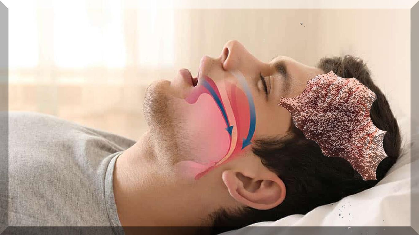 Apneia do sono associada a alterações semelhantes ao Alzheimer no cérebro