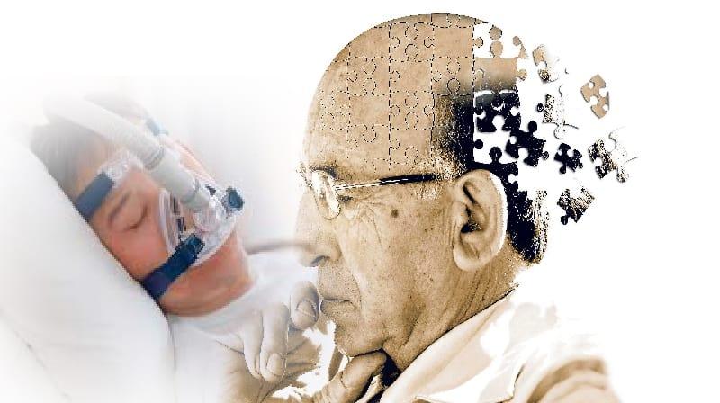 Apneia do sono e Alzheimer: Sinais idênticos de dano cerebral