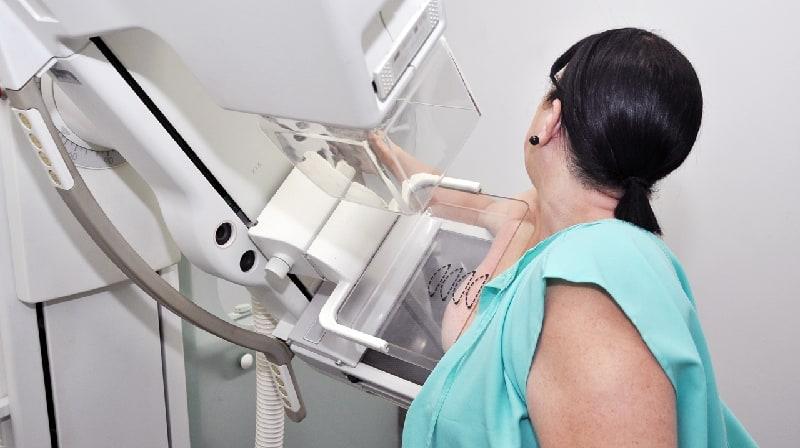 As mamografias podem mostrar quem está em risco de insuficiência cardíaca?