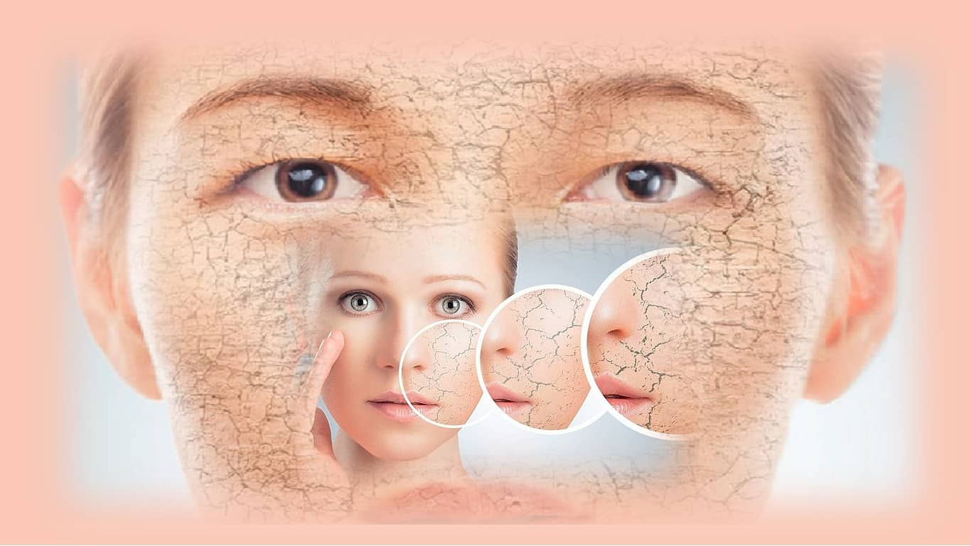 As principais dicas dos dermatologistas para evitar a pele sêca