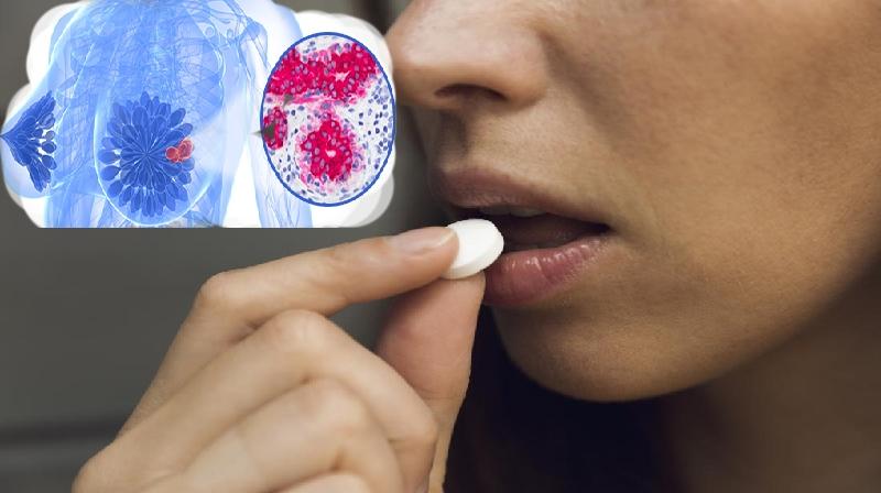 Aspirina: Amigo ou inimigo após câncer de mama?