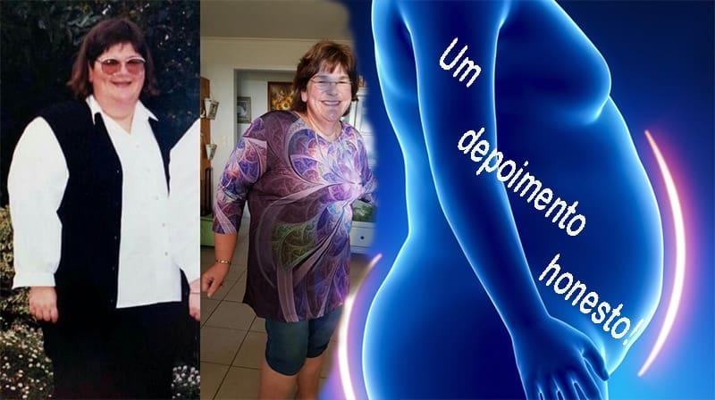 Através dos meus olhos: cirurgia para perda de peso; um depoimento honesto!