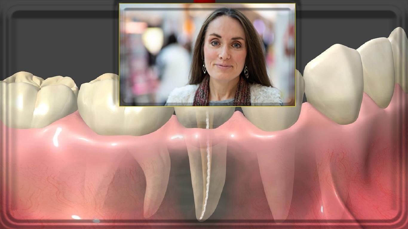 Através dos meus olhos: infecções dentárias ocultas - Um depoimento fora de série