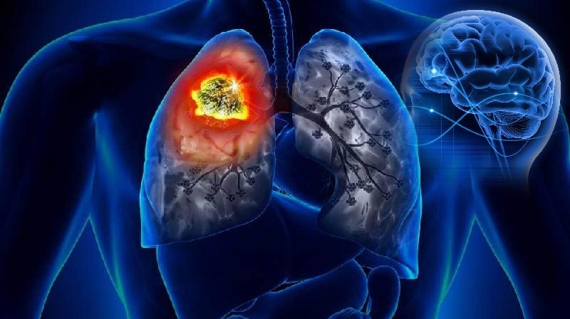 Caminho da metástase cerebral do câncer de pulmão...