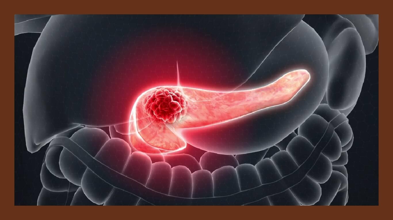 Câncer de Pâncreas : o você precisa saber!