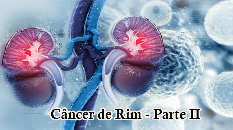 """Câncer de Rim """"Parte II"""" Um estudo completo Sociedade Americana de de Câncer"""