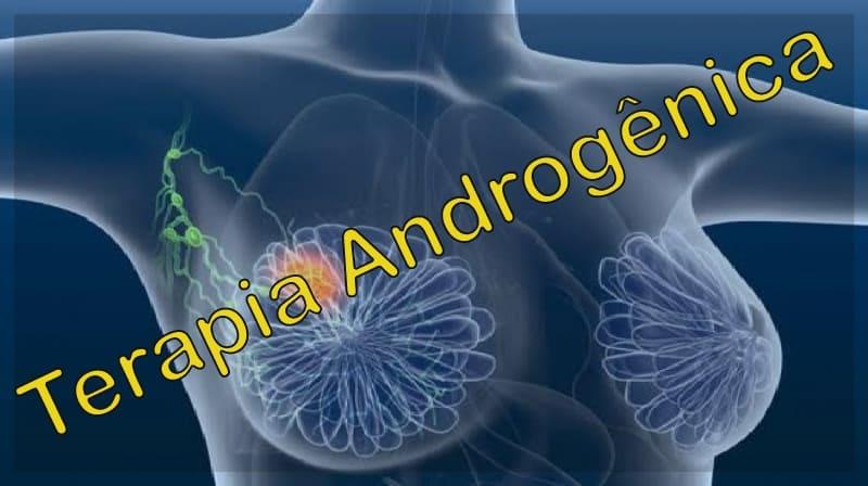 Câncer de mama: terapia androgênica se mostra promissora em estudo preliminar
