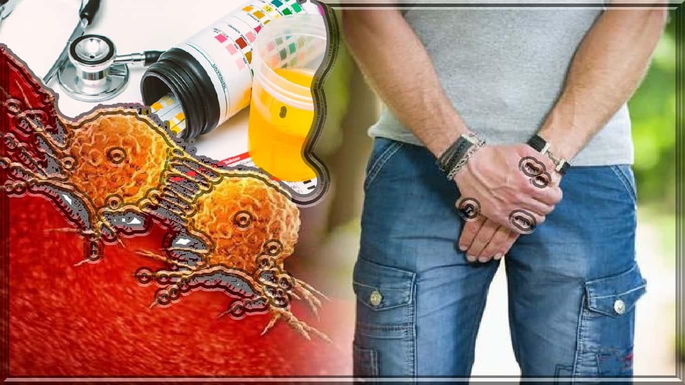 Câncer de próstata: teste de urina não invasivo se aproxima
