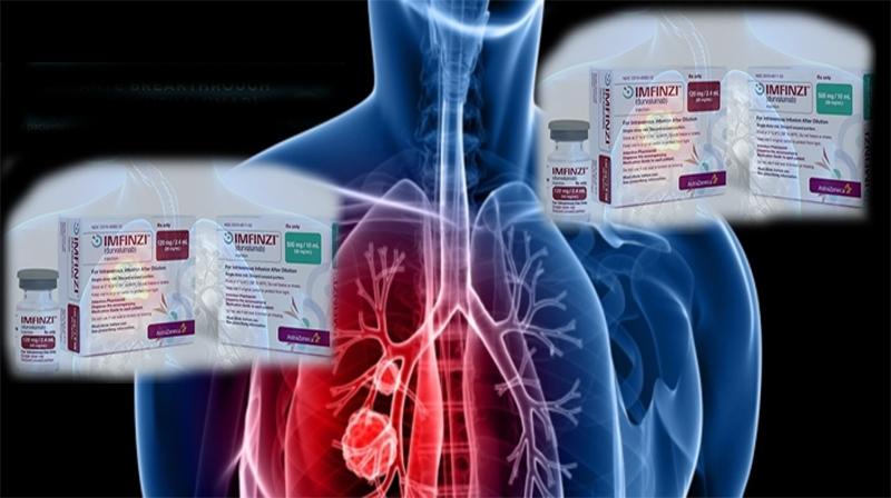 Câncer de pulmão: Imunoterapia é aprovada no Brasil para casos localmente avançados