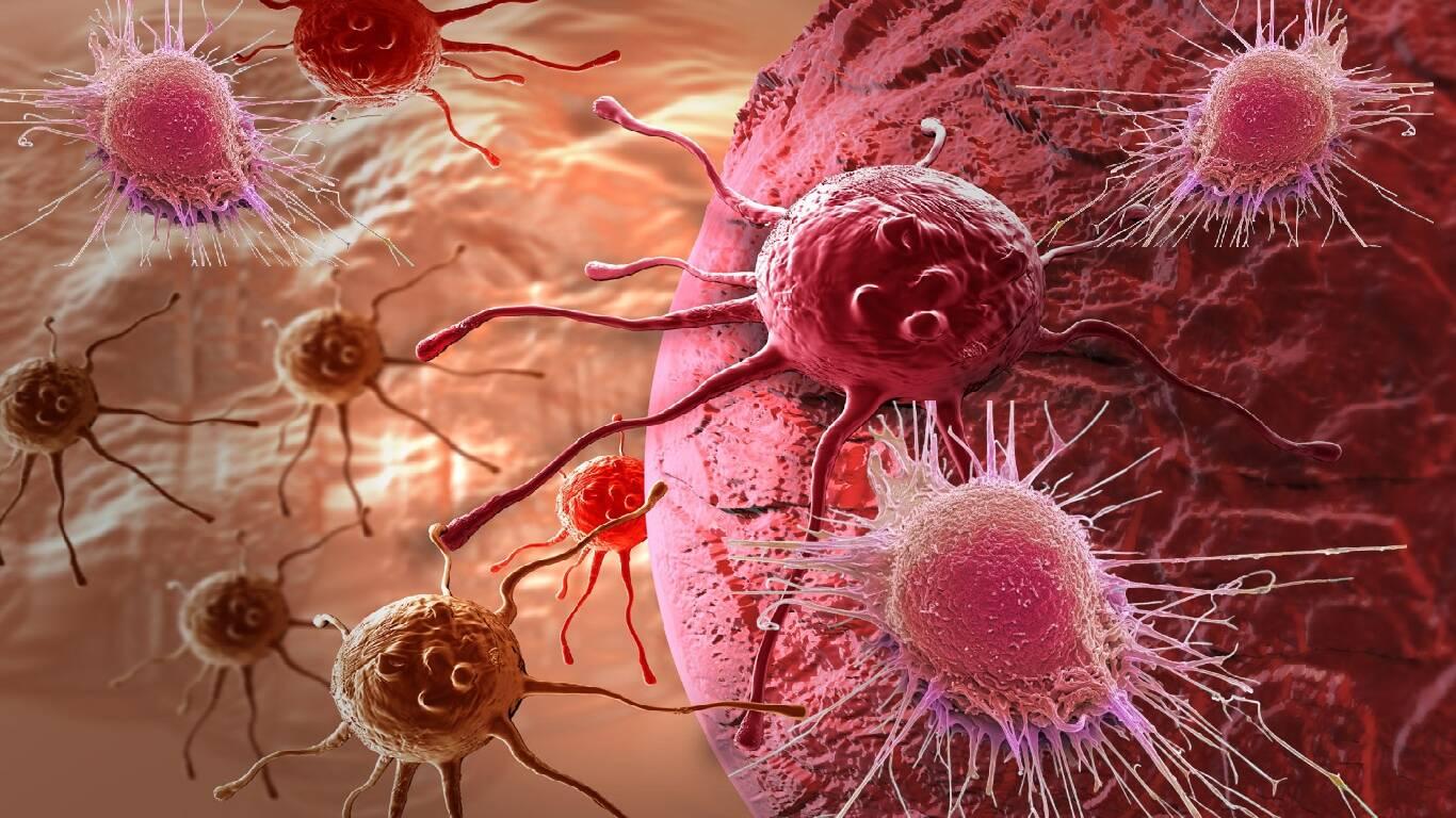 Como prevenir o câncer?