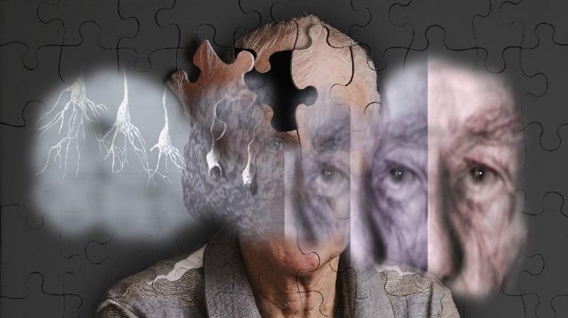 Doença de Alzheimer: células imunes do cérebro podem oferecer novo alvo de tratamento