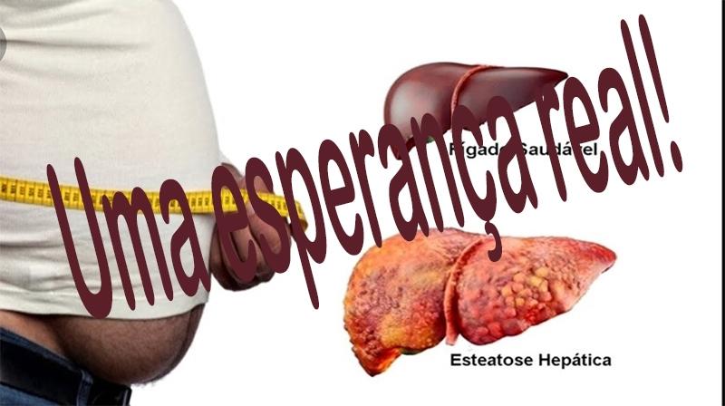 """Doença hepática gordurosa não alcoólica: nova droga se mostra """"segura"""" e eficaz"""