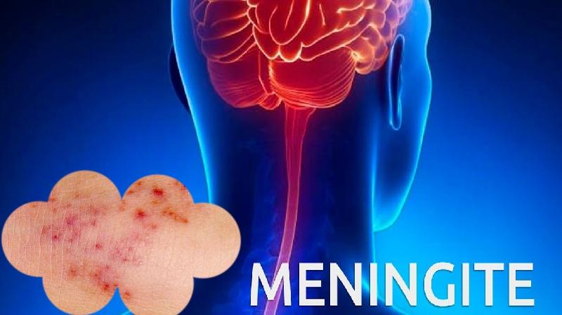 Erupção da meningite: quadros, sintomas e teste...