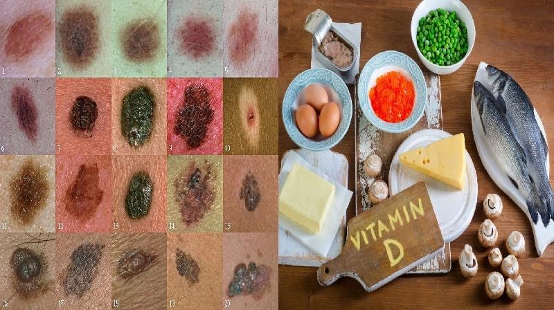 Esse mecanismo de vitamina D ajuda a combater o melanoma