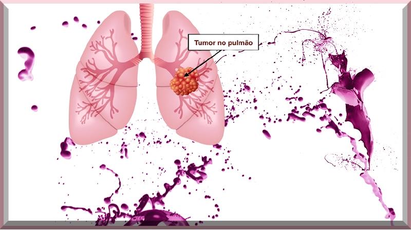 Estudo do NIH ilumina as origens do câncer de pulmão em não fumantes