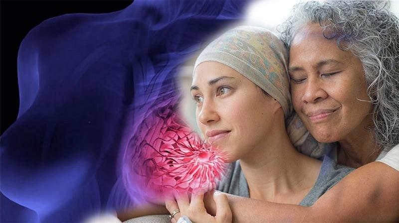 """""""Evitaremos a quimioterapia em 70% das mulheres com o câncer de mama mais comum"""""""
