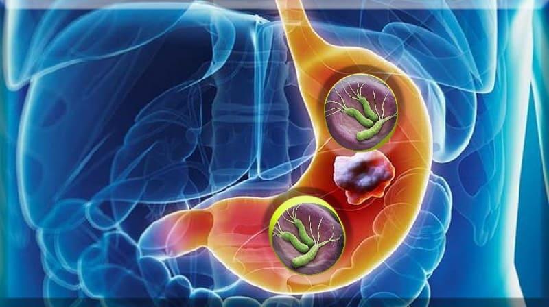 História familiar de câncer gástrico e tratamento com Helicobacter pylori