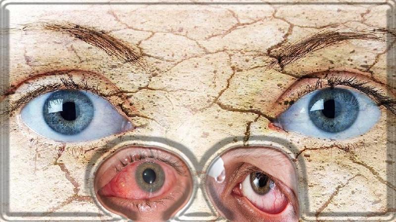 Medicamentos para alguns distúrbios oculares comuns