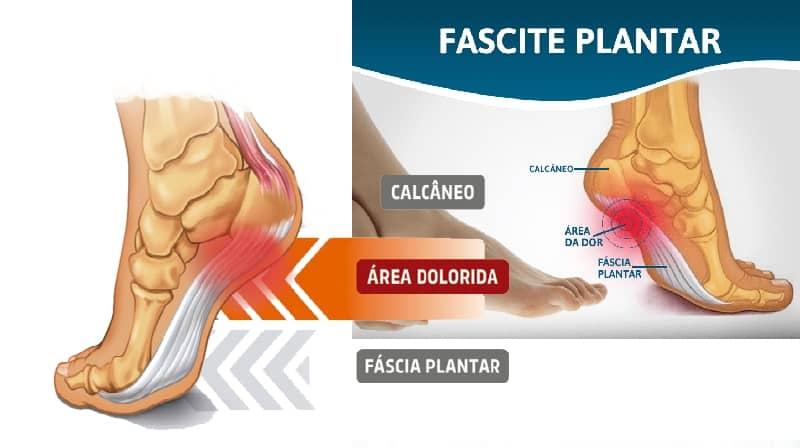 Melhores exercícios e remédios para fascite plantar