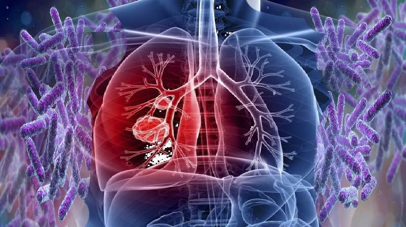 Mutação torna a Tuberculose resistente a antibióticos comuns