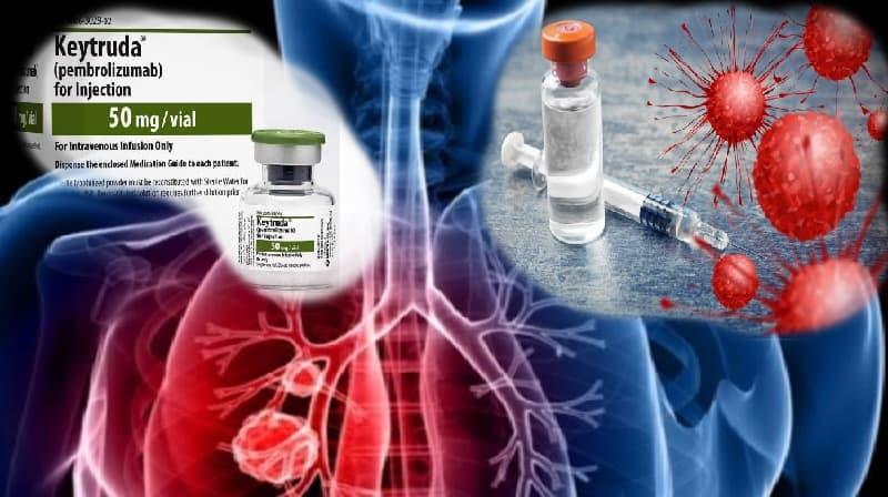 Nova indicação de tratamento com imunoterapia para o câncer de pulmão avançado no Brasil