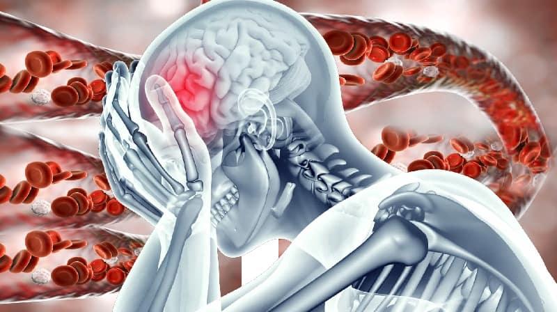 Novo exame de sangue detecta tumores cerebrais com precisão de 87%