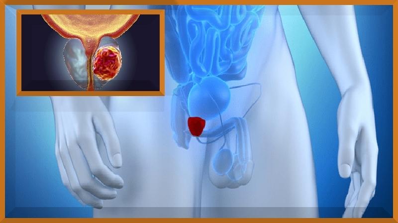 Novo teste de câncer de próstata pode evitar biópsias desnecessárias...