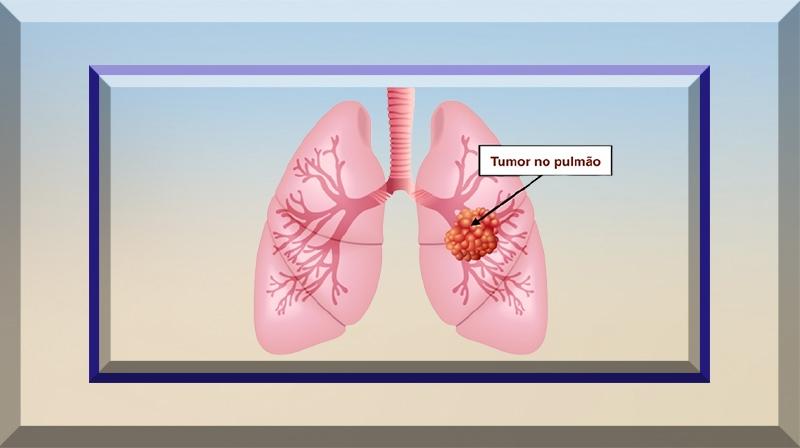 Novo tratamento aprovado para câncer de pulmão