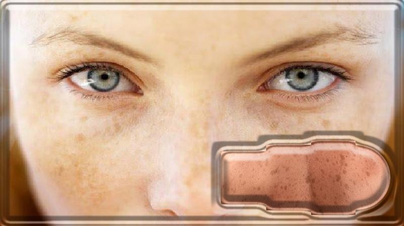 O que saber sobre manchas solares no rosto