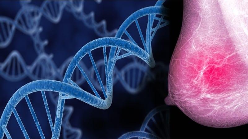 O que você precisa saber sobre o câncer de mama