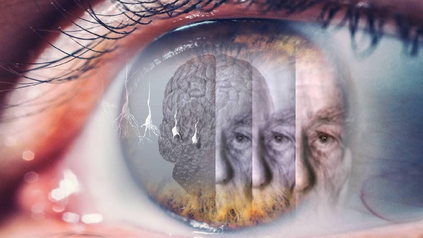 Olhos podem alertar precocemente a doença de Alzheimer