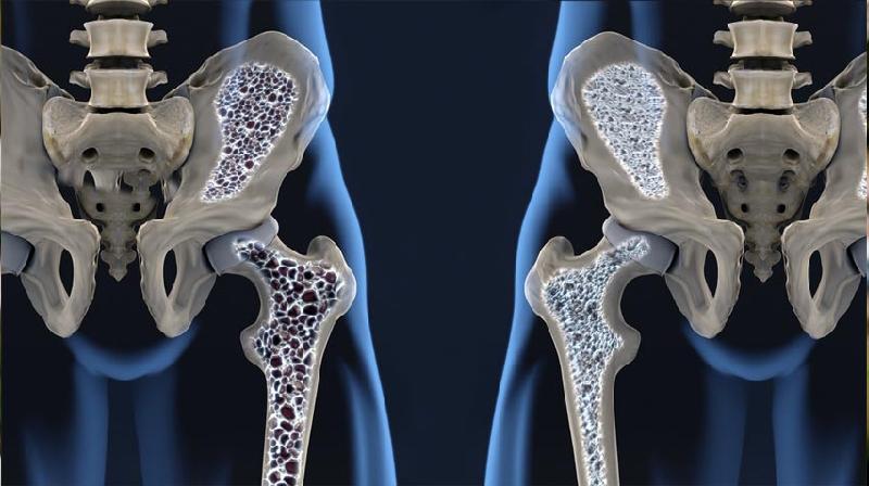 Osteoporose: pesquisadores descobrem outro possível fator de risco