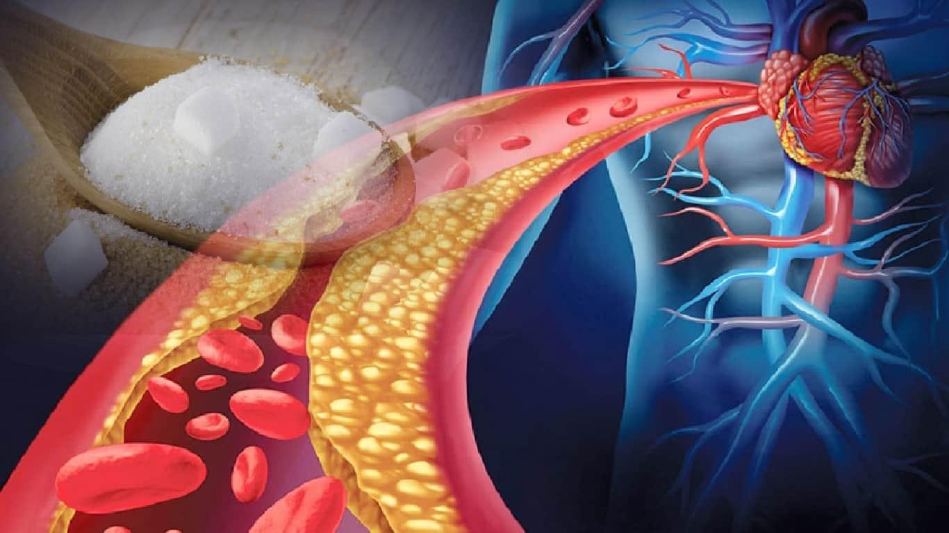 Pessoas com colesterol alto devem eliminar carboidratos, não gordura saturada, sugere estudo