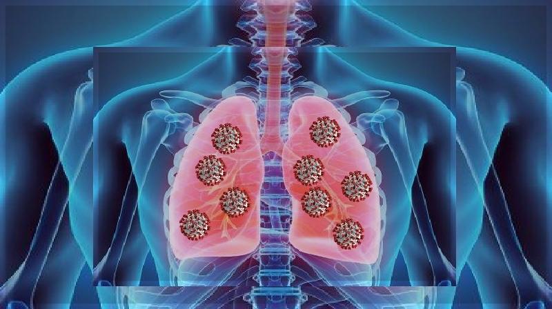 Três razões pelas quais COVID-19 pode causar hipoxia silenciosa