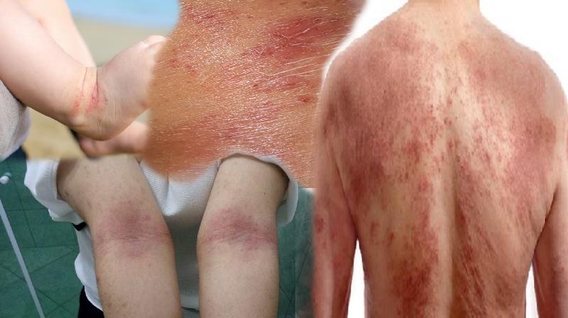 Um novo medicamento pode melhorar a dermatite após uma dose única