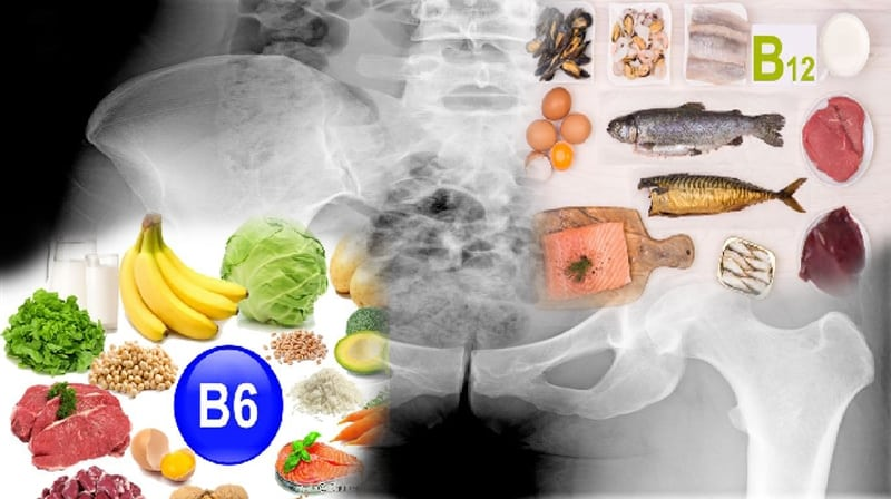 Vitaminas B-6 e B-12 ligadas ao aumento do risco de fratura de quadril