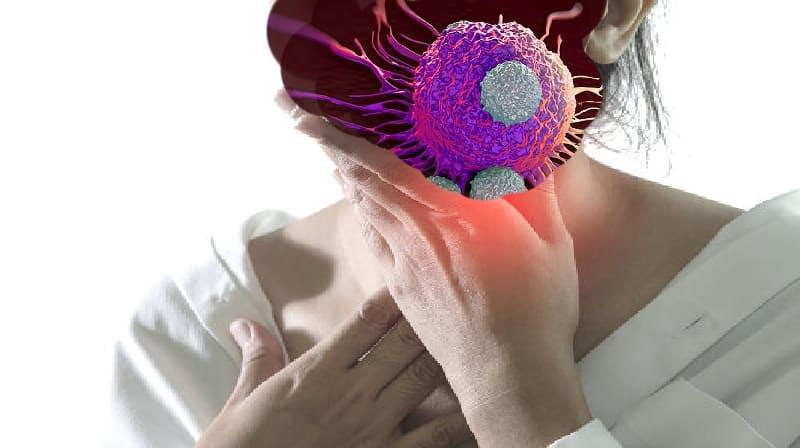 Você pode ter câncer nas amígdalas?