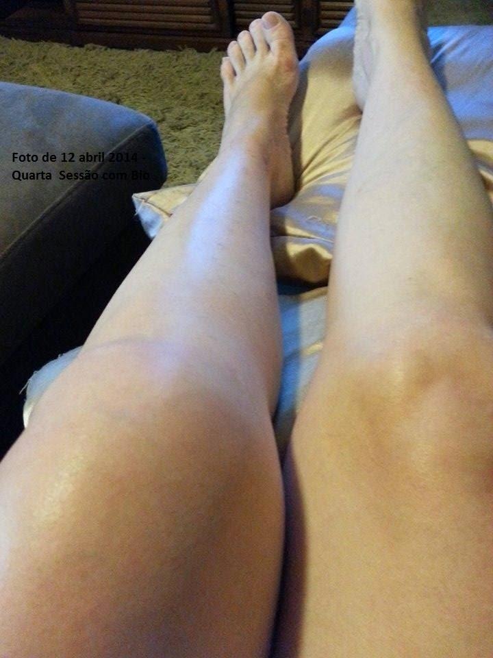 Artrite nas mãos e edema severo no joelho
