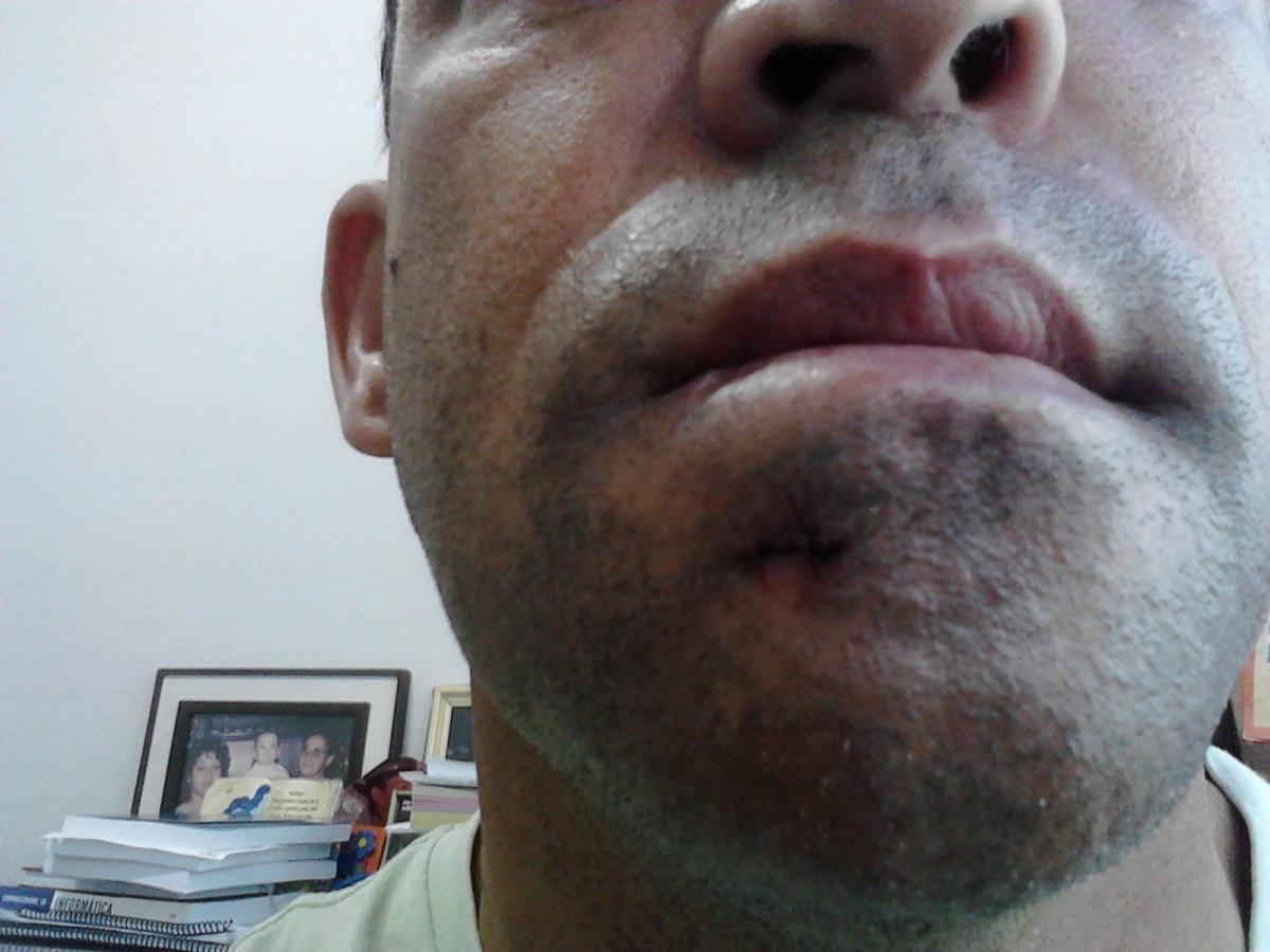 Edema severo com perfuração da pele