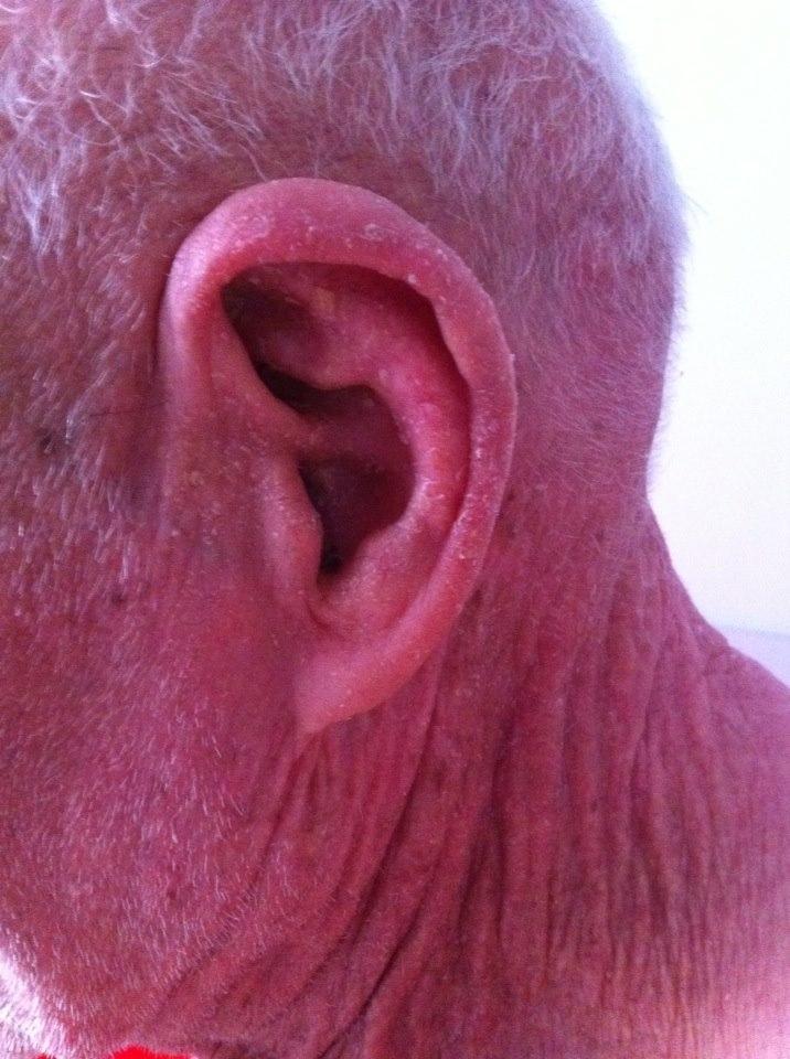 Micose severa de cabeça e rosto