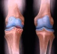 Tratamento natural para artrose