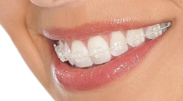Ortodontia e Ortopedia Facial - Foto 1
