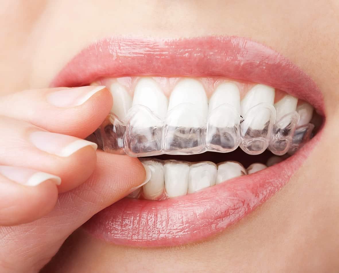 Ortodontia e Ortopedia Facial - Foto 2