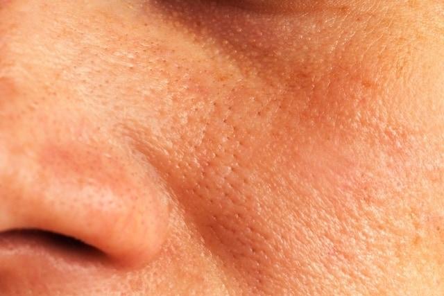 Por que algumas pessoas sofrem com os poros dilatados?